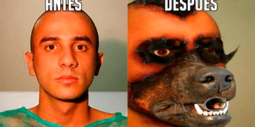10 People Who Had Extreme Surgeries - The best Top 10